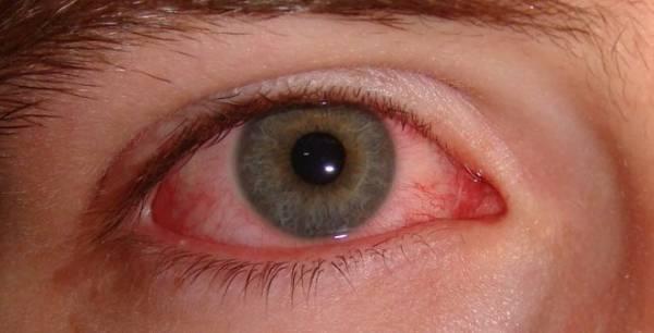 Bảo vệ mắt khi đi bơi